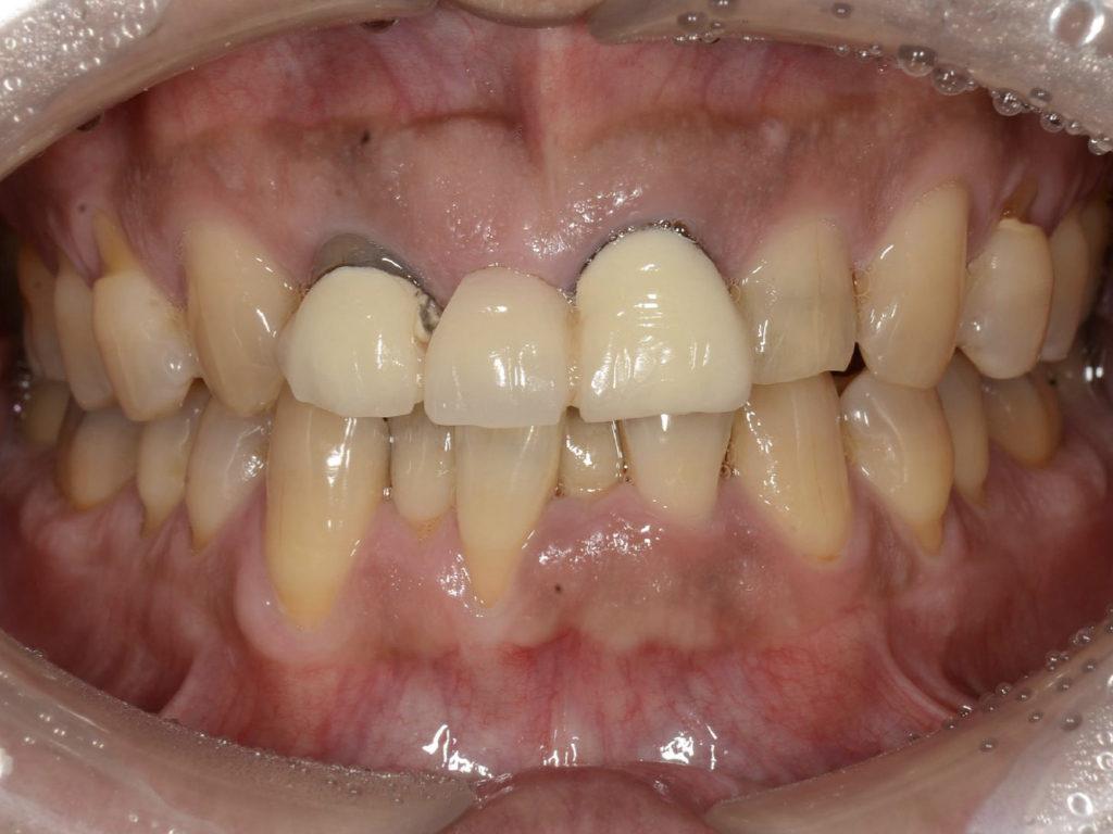 見た目の悪いブリッジをインプラントで改善【前歯部審美症例2】