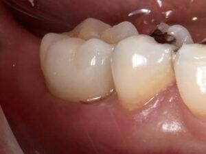保存不可能な奥歯をインプラントで治療した症例