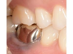根っこが折れた奥歯をインプラントで治療した症例